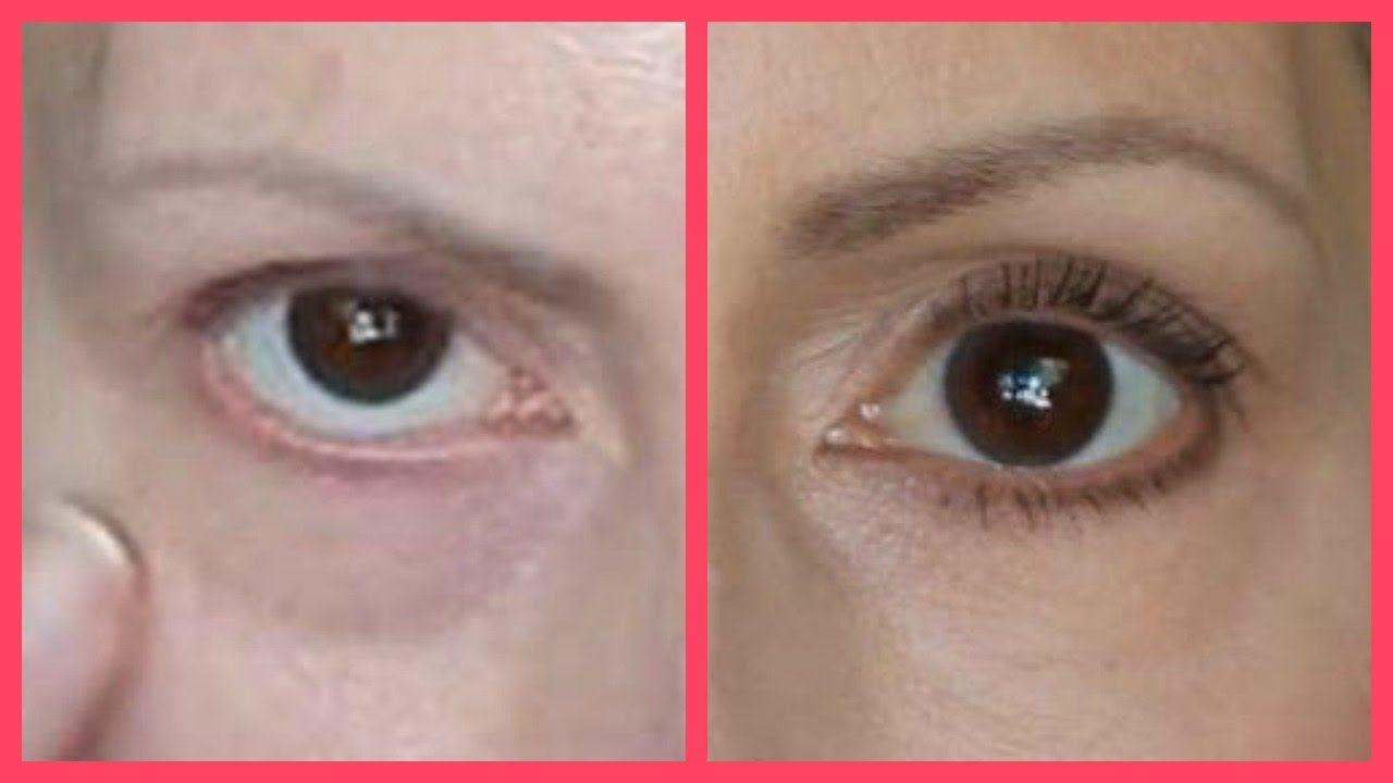 Get rid of tear troughs under eye bags dark circles