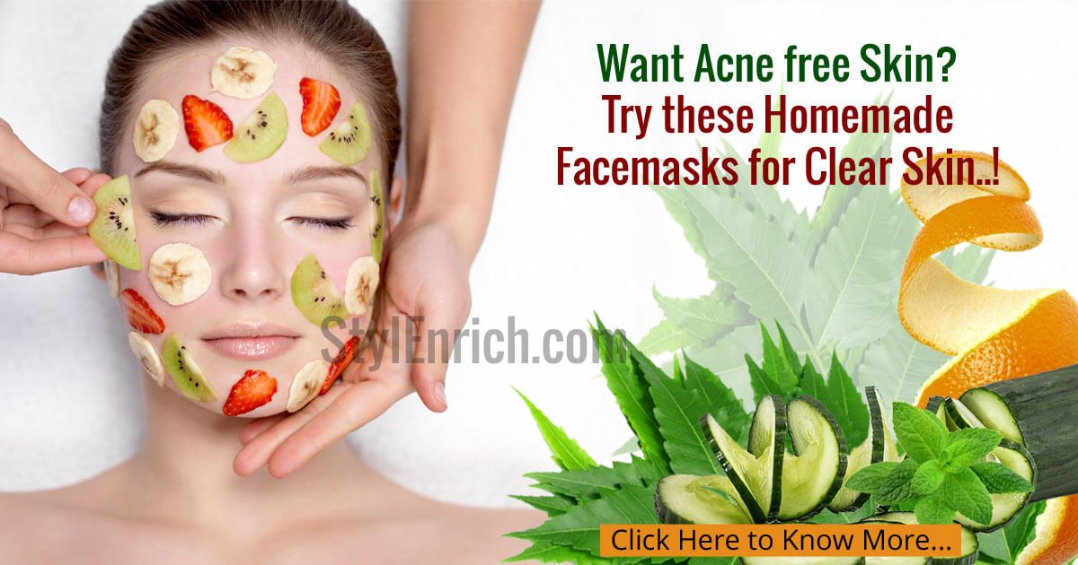 10 home remedies for acne that work homemade face masks face 10 home remedies for acne that work scar treatmentacne treatmentshomemade face maskseasy solutioingenieria Images