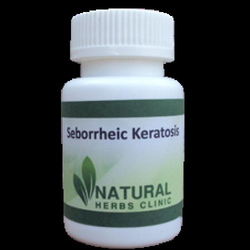 Seborrheic Keratosis Symptoms, Causes, Treatment   Natural Herbs Clinic