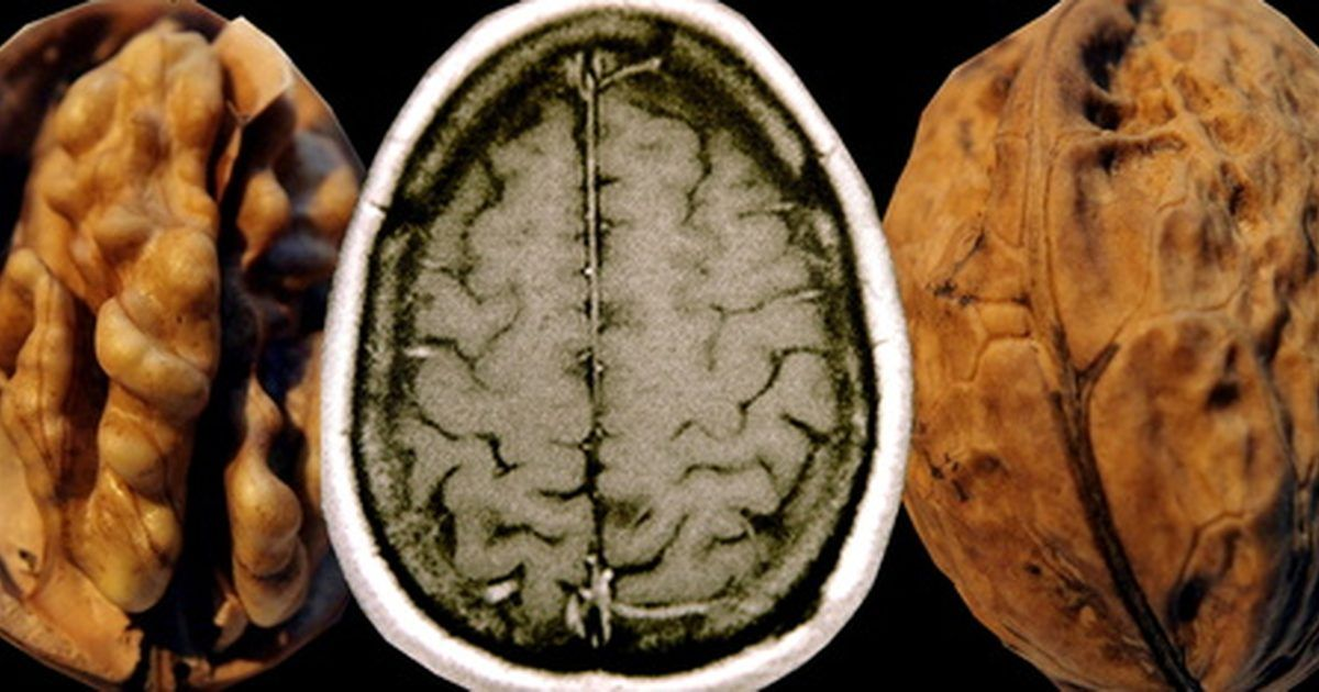 Can You Repair Myelin Sheath With Diet Brain Fat And Autoimmune