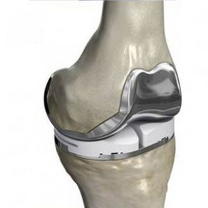 Three-compartment knee prosthesis (cemented) | Knee replacement, Total knee  replacement, Knee replacement recovery