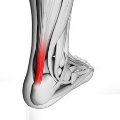 Achilles Tendonitis :: Learn about symptoms and treatment of this painful sports ankle injury.
