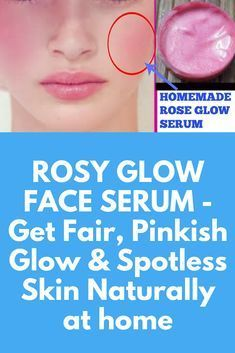 ROSY GLOW FACE SERUM - Get Fair, Pinkish Glow & Spotless Skin Naturally at home #faceserum