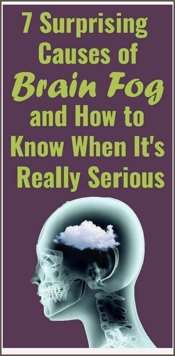 7 Causes Of Brain Fog That Will Surprise You