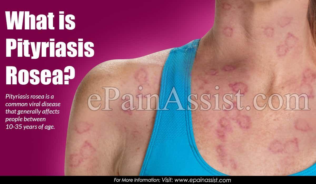 Pin On Skin Diseases Information Center