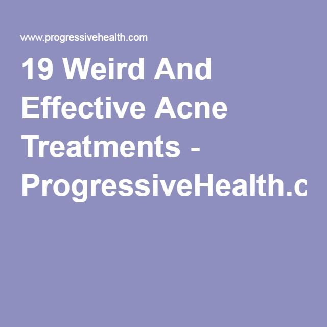 19 Weird And Effective Acne Treatments -
