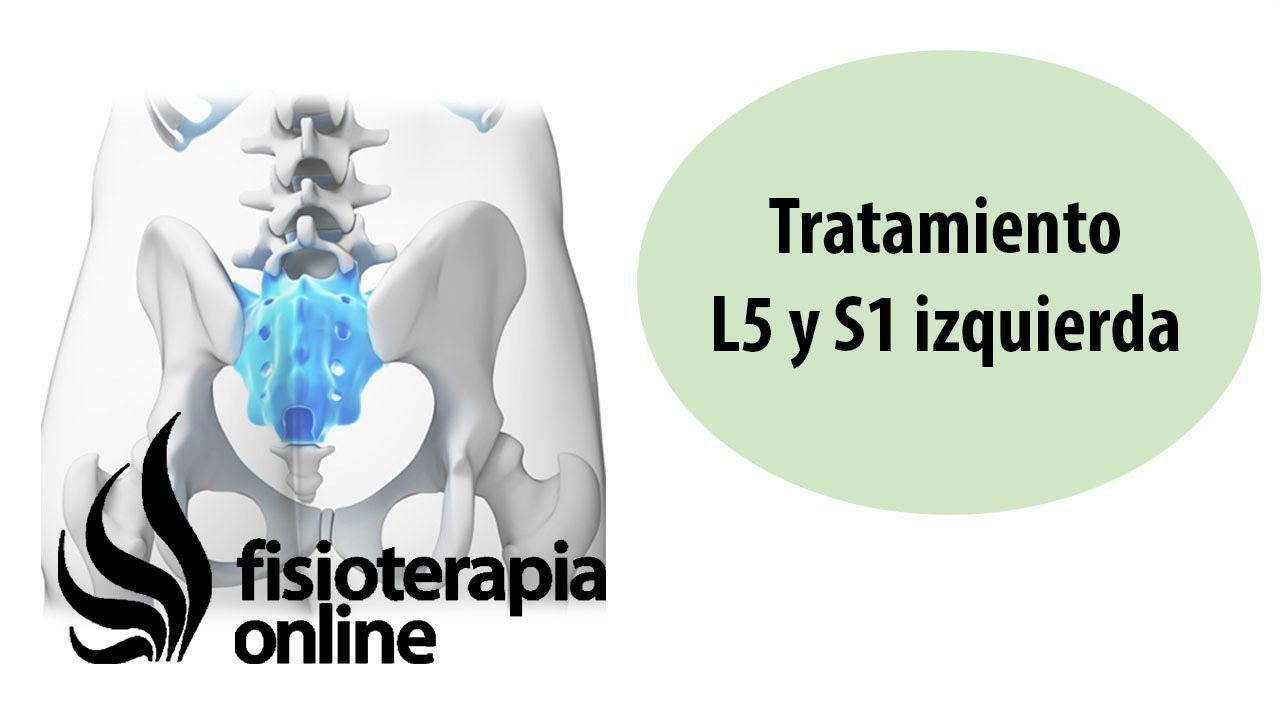 Tratamiento De La Hernia Discal L5 Y S1 Izquierda O Quinta Lumbar Y Sacro Hernia Discal Hernia Ejercicios Para Hernia Discal