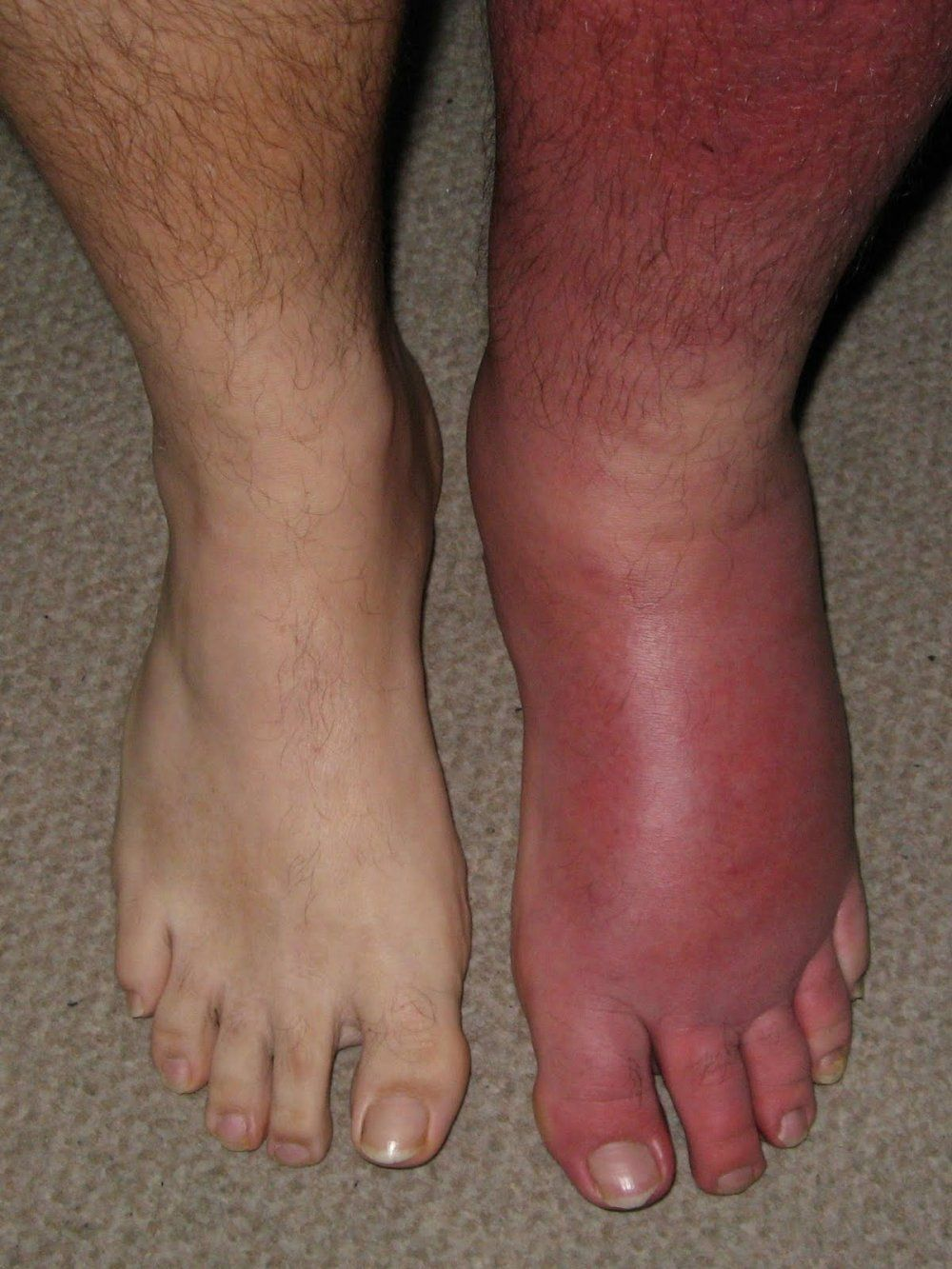 Cellulitis on the feet: how to get rid 96