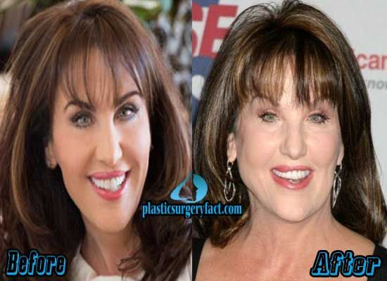 Robin Mcgraw Plastic Surgery Before And After Facelift Robin Mcgraw Plastic Surgery Plastic Surgery Facelift