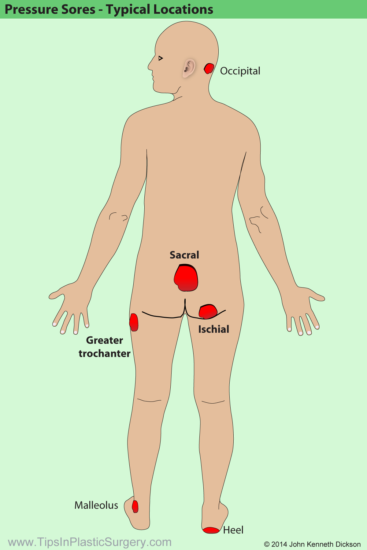 Typical locations for pressure sore These diagrams have been designed for plastic surgery