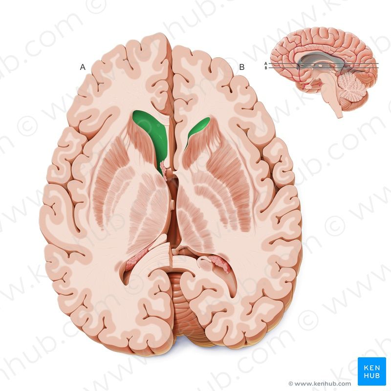 Anterior horn of the lateral ventricle (Cornu anterius ventriculi ...