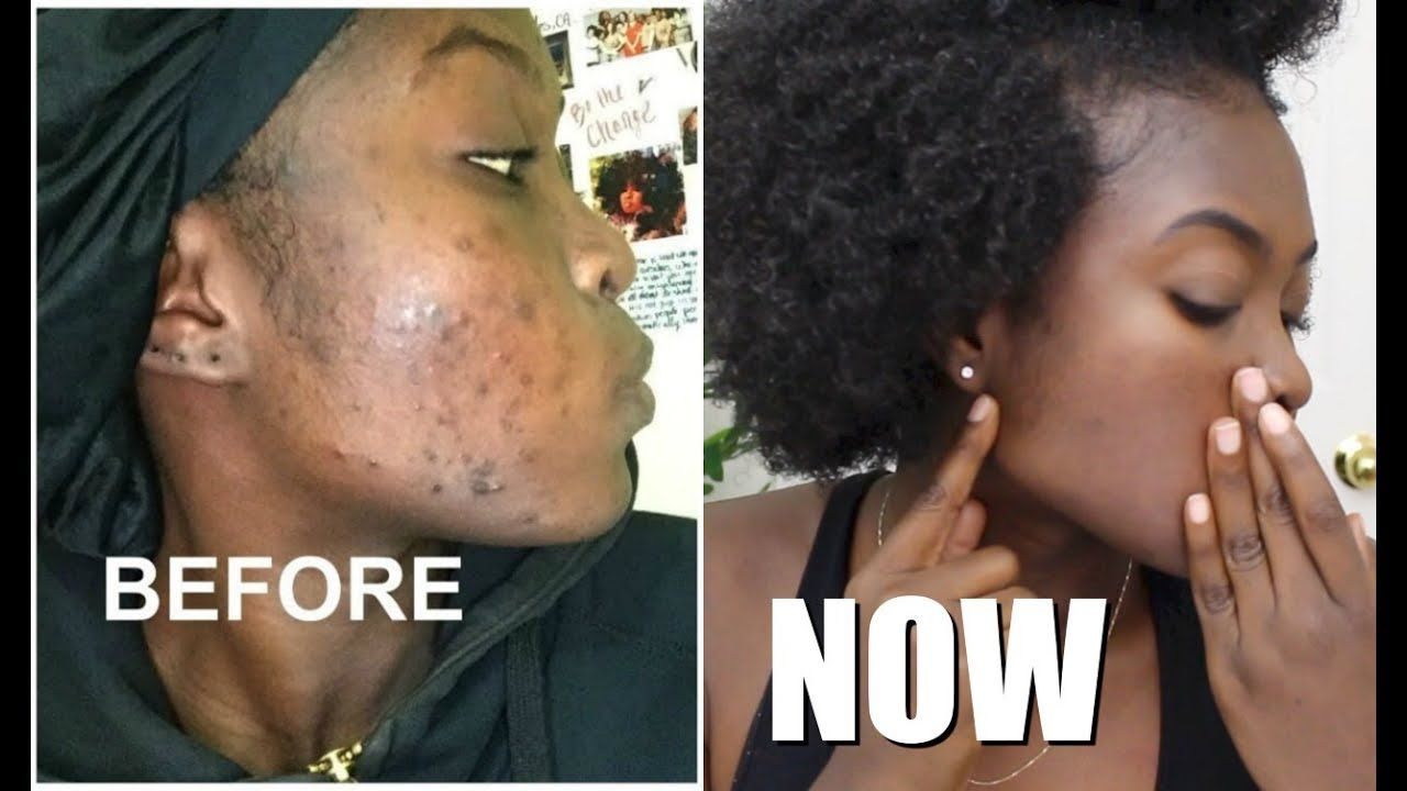 Skin Care Update Clearing Dark Marks Hyperpigmentation Youtube Skin Hyperpigmentation Skin Care Hyperpigmentation Acne Dark Spots