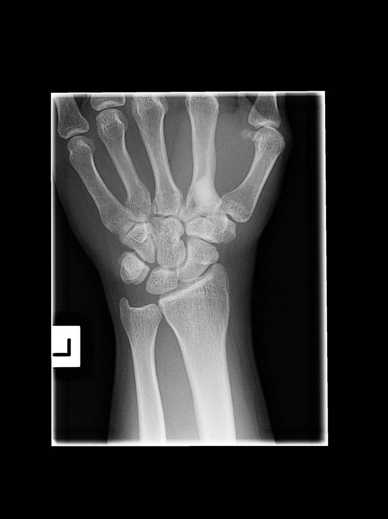 16+ Osteoporosis abnormal bone density scan information