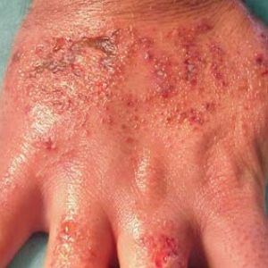 Home Remedies For Dermatitis - Natural Treatments & Cure For Dermatitis | Natural Home Remedies