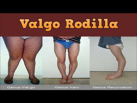 Valgo Rodilla Rodillas Valgas Ejercicios Piernas Arqueadas Tratamiento En Adultos Rodillas Piernas Ejercicios