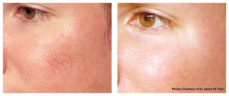 Rosacea is a common condition which affects a large percentage of women, and some men too. It is incurable, and it is characterized by redness of the skin and acne-like pimples, as well as flushing and a 'hot sensation' in the skin, focused around the cheeks and nose. Rosacea tends to go through periods of remission before flaring up again, but the periods between flair ups can vary – some people are lucky and go long... FULL ARTICLE…