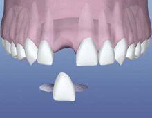 Dental Flipper Alternatives Dental Flipper Choices Dental Bridge Dental Bridge Cost Tooth Bridge