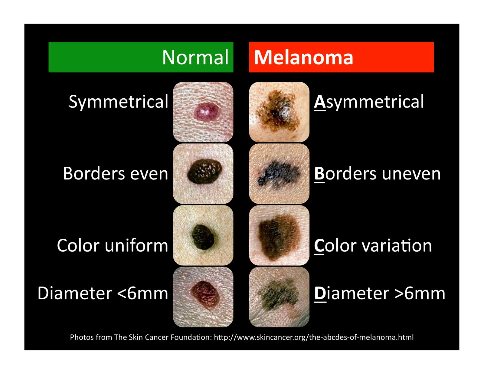 how to check moles for melanoma