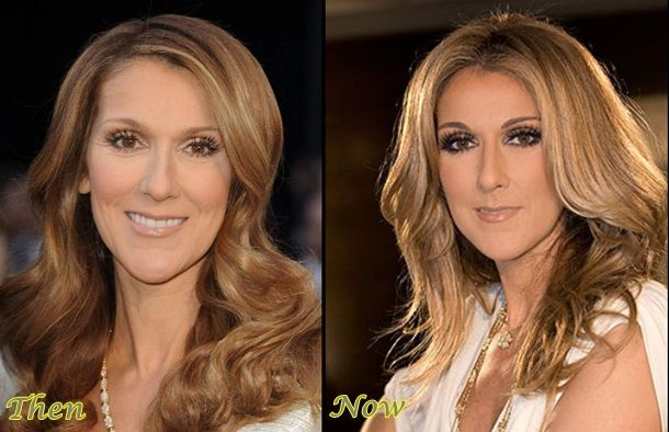 Celine Dion Plastic Surgery Before And After Photos Plastic Surgery Celine Dion Celebrity Plastic Surgery