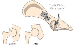 Image result for triple pelvic osteotomy