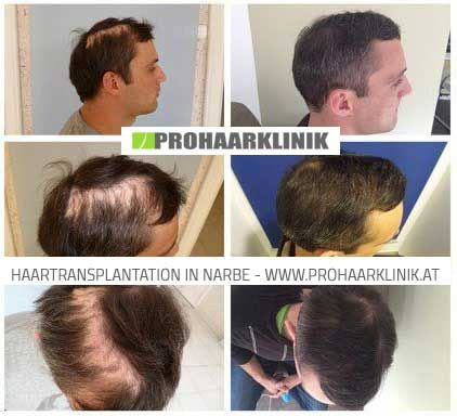Haare implantieren kosten