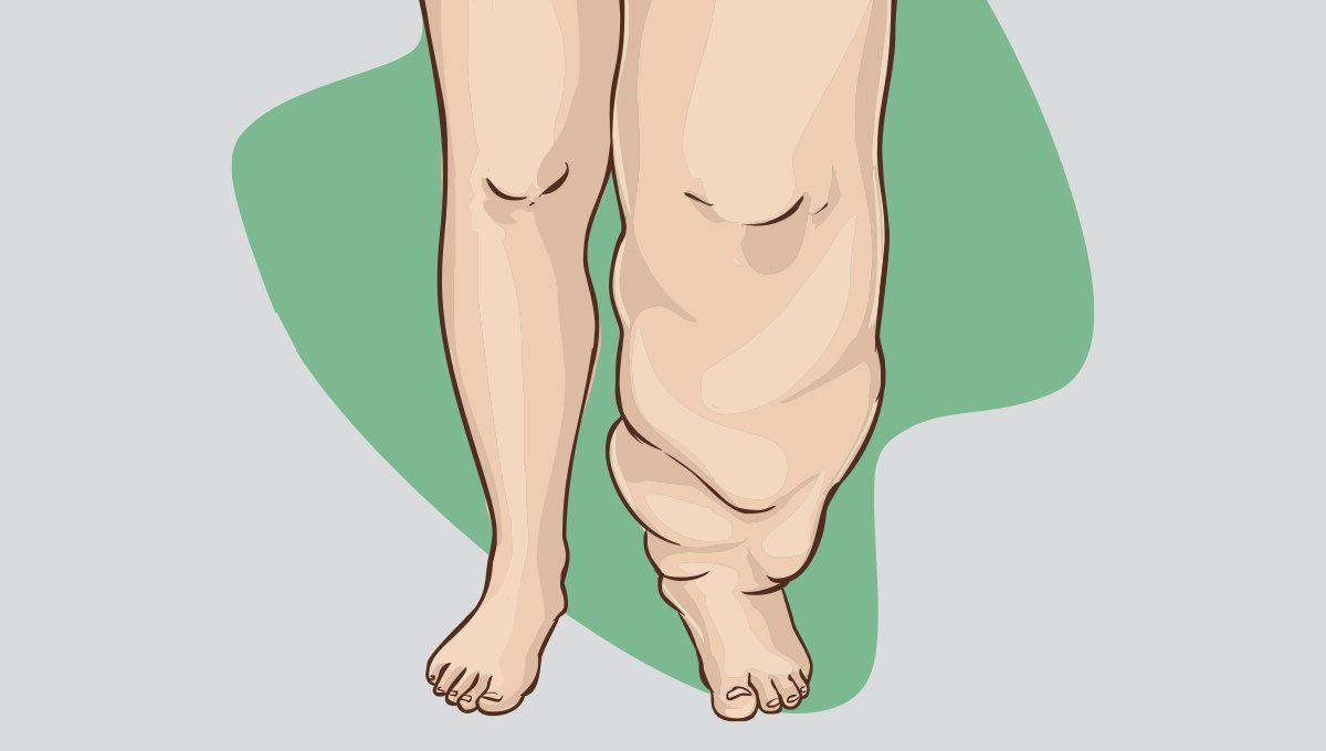 What To Know About Elephantiasis Lymphatic Filariasis Lymphatic Preventive Measure