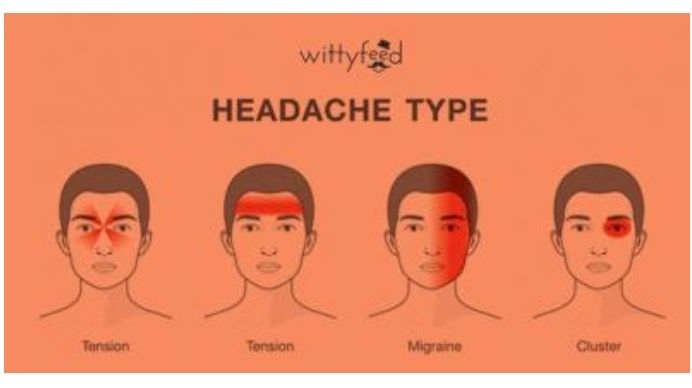 headache location types good to know pinterest health