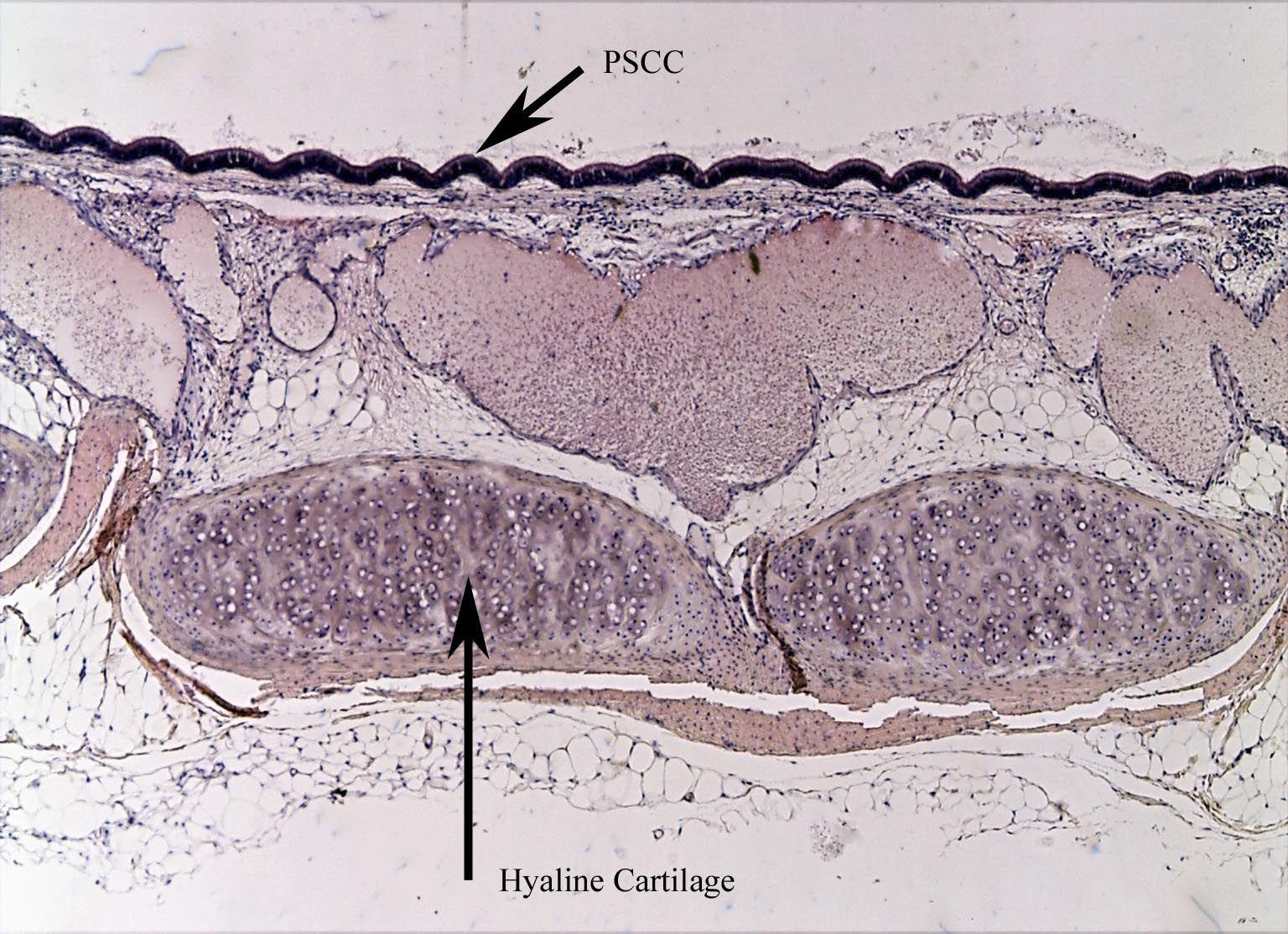 trachea_low.jpg 1,536×1,114 pixels | Anatomy 2 Lab Practical | Pinterest