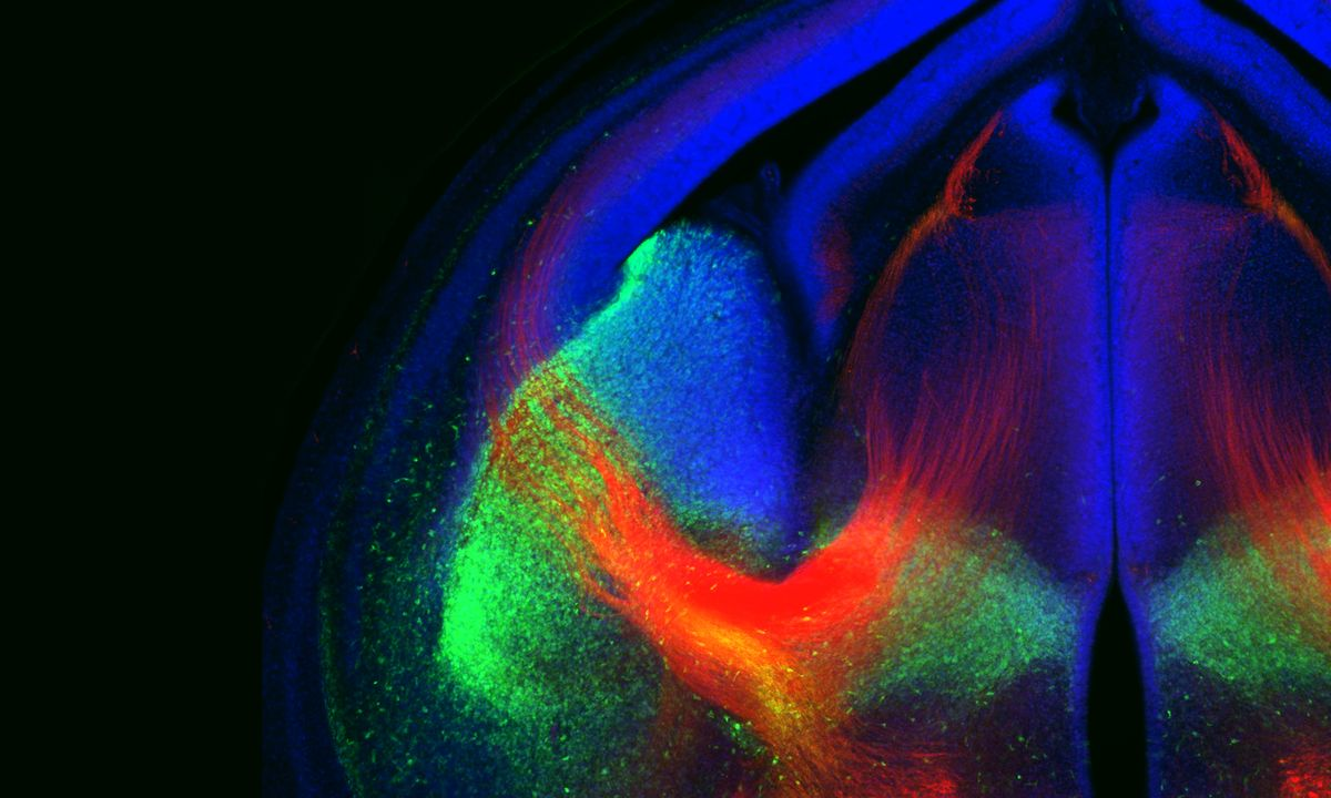 16 Stunning Images Reveal The Brains Fragile Beauty Brain Wiring Of Navigating Axons A Circuitous Route This Colorful Picture Shows In Developing Red Are Cables That Neurons Use To