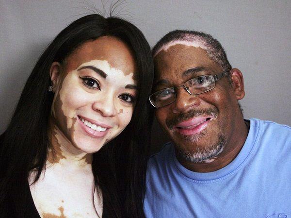 enfermedades de la piel vitiligo fotos
