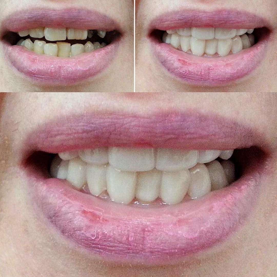 We cover missing or stained teeth! Want your own