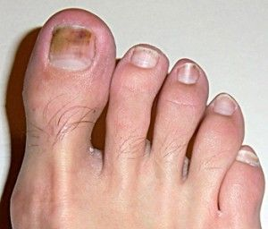 What Causes Toenail Fungus? 7 Reasons Why People Get Infected ...