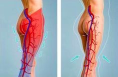 mauvaise circulation sanguine jambes que faire