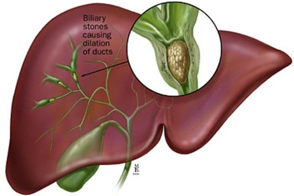 Biliary Stones Causing Dilation Of Ducts (Video Montage Of Some Images) #gallbladder
