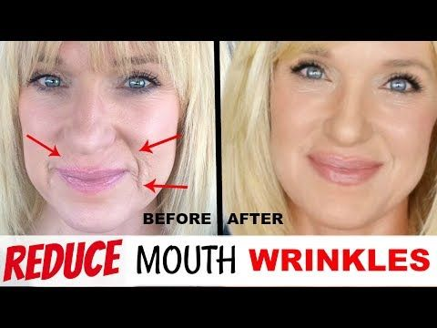 How To Get Rid Of Deep Mouth Wrinkles How To Reduce And Remove Mouth Wrinkles Khichi Beauty Youtube Mouth Wrinkles Lip Wrinkles How To Line Lips