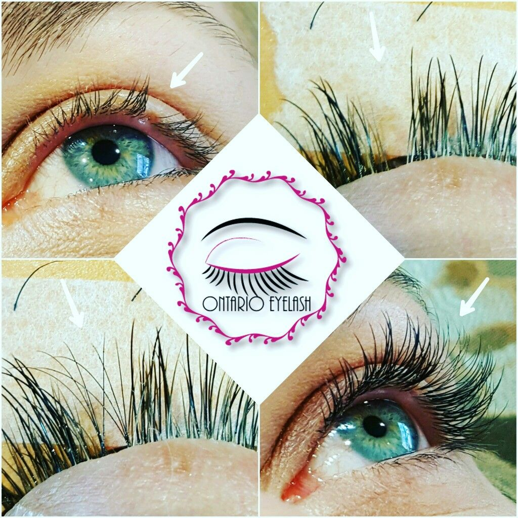 Russian Volume eyelash extensions used to hide unsightly ...