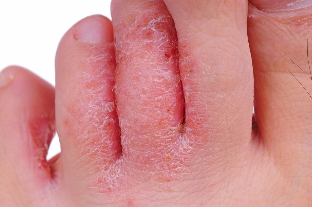 Infected By Skin Infection Athletes Foot Toenail Fungus Cure Home Remedies Foot Fungus
