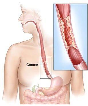 causas de contrações musculares do estômago