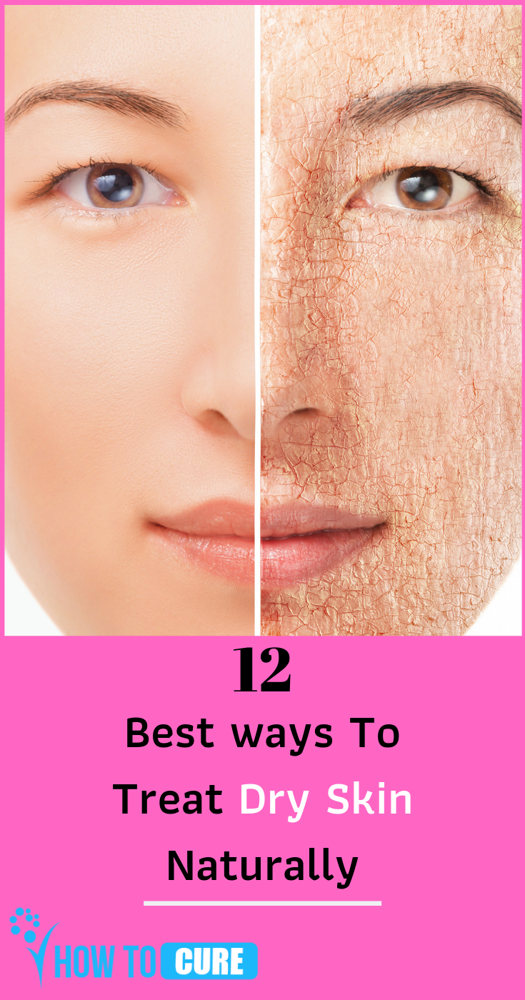 How To Get Rid Of Dry Skin On Face Howtocure Dry Skin On Face Treating Dry Skin Skin