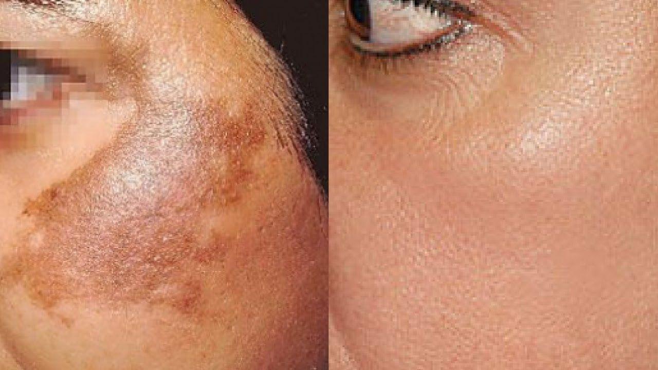 How To Use Potato To Treat Skin Pigmentation Dark Spots Acne Scars