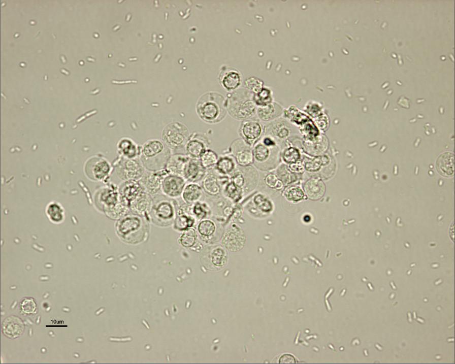 leukocytes+in+urine | Managing the E coli UTI | Urine ...