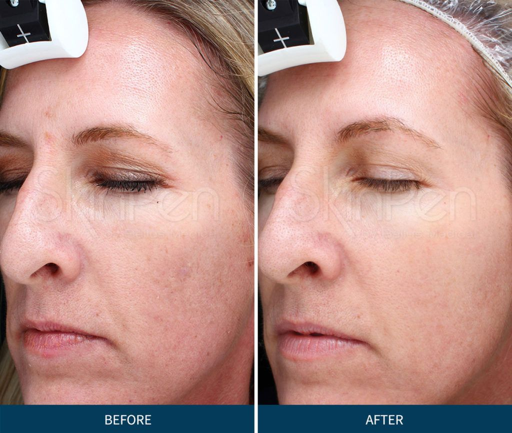 Microneedling Is A Revolutionary Skin Care Procedure That Involves Creating Tiny Perforations In The S Microneedling Skin Care Procedures Natural Wound Healing