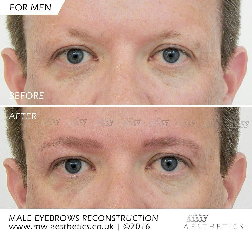 Semi Permanent Eyebrows For Men Eyebrows Reconstruction For