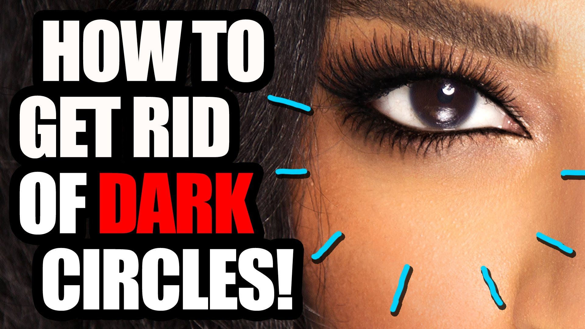 How to Get Rid of Dark Circles!   Dark circles, Dark ...
