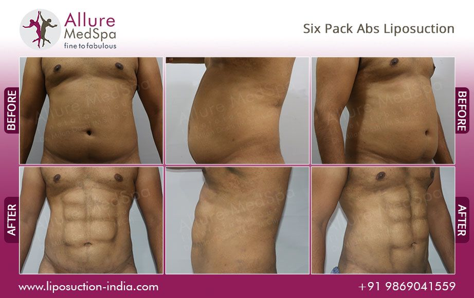 Abdominal etching or six pack liposuction (liposculpture) is