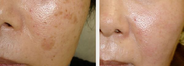 Before And After Microdermabrasion Removal Of Brown Age Spots On Face Age Spots On Face Skin Spots Home Remedies For Skin