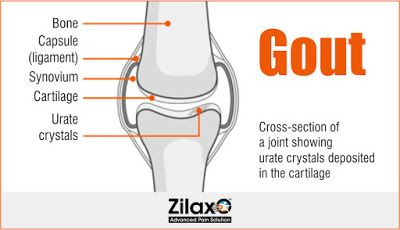 Zilaxo Advanced Pain Solution: Gout: Myths And Facts