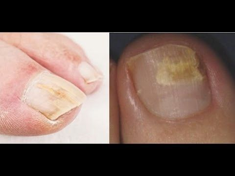Home Remedy Cure For Toenail Fungus Cure Nail Fungus With