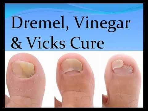 How to Cure Nail Fungus with Vinegar & Vicks. Difference between ...