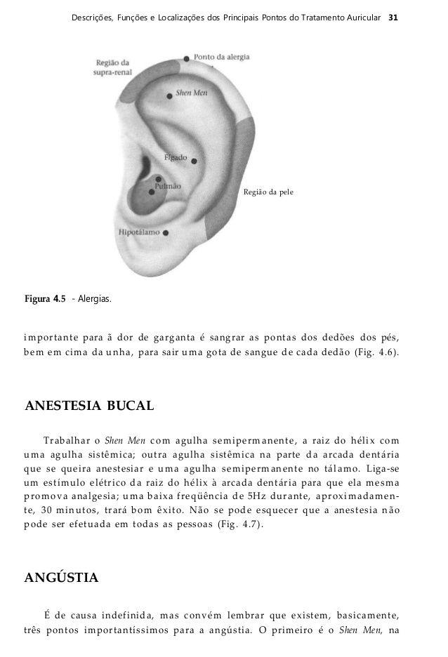 32 Auriculoterapia Figura 4.6 - Garganta. Figura 4.7 - Anestesia ...